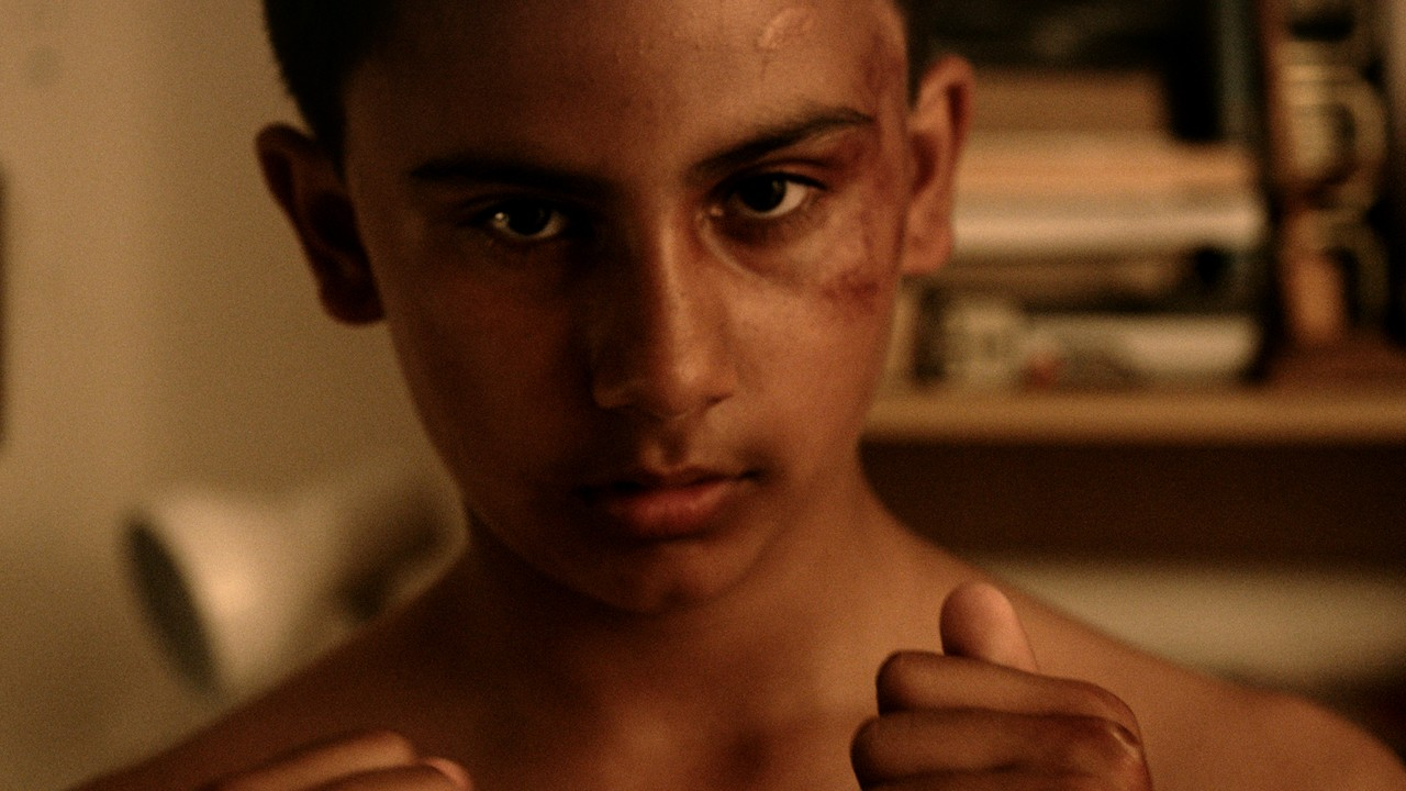 a young boy with a bloody face